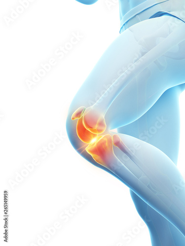 3d rendered medically accurate illustration of a painful knee Wallpaper Mural