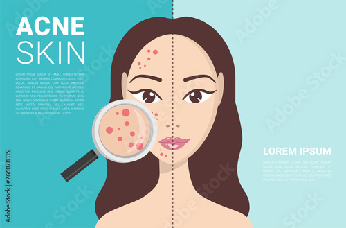 Acne, skin problems, stages of acne Canvas Print