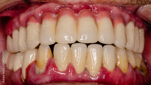 close up of a teeth with a severe, acute inflammation Wallpaper Mural