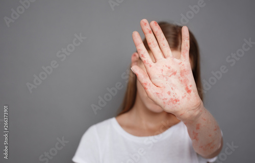 Stop Measles. Girl With Virus Closing Face Over Grey Background