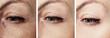 Leinwandbild Motiv woman wrinkles face before and after correction procedures