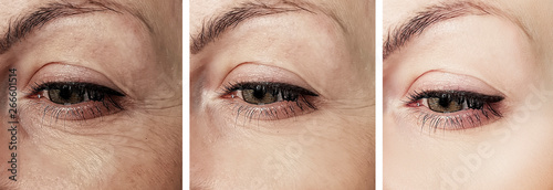 Obraz woman wrinkles face before and after correction procedures - fototapety do salonu