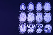 canvas print picture - MRI of the brain on a black background with blue  backlight. Right  place for advertising inscription