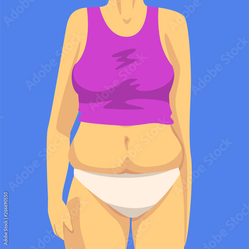 Obraz na plátne  Part of Female Body with Fat Belly, Human Figure After Weight Loss, Front View,