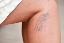 Varicose Veins On Female Legs ...