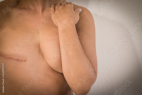 Cancer woman disease concept with cucasian woman without tits for mastectomy ope Fototapet