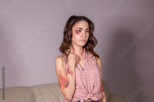 violence issues - Woman victim of domestic violence and abuse over grey backgrou Canvas Print