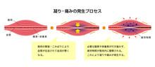 肩こり(凝り)・痛みの発生プロセス イラスト / 解説文付き