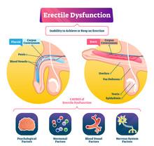 Erectile Dysfunction Vector Illustration. Labeled Impotence Explain Scheme.