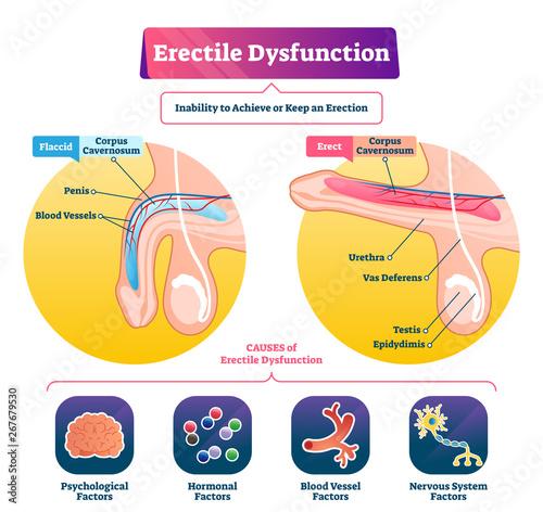 Fotografía Erectile dysfunction vector illustration