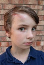 Portrait Of A Child With A Big Bruise And Cut On The Forehead Looking Scared
