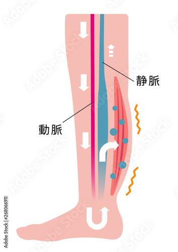 脚のむくみ(浮腫)の発生原因・過程 イラスト/ むくみの発生 Wallpaper Mural