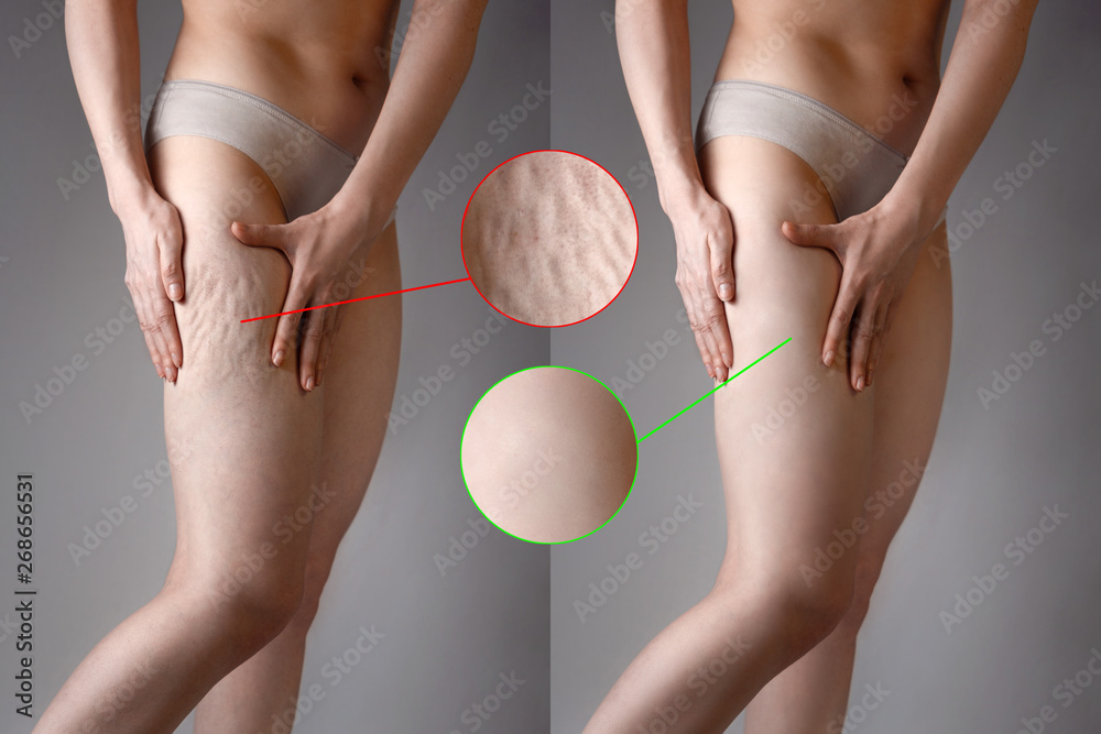 Fototapeta The woman shows cellulite and smooth and delicate skin on her legs. The concept of aesthetic medicine and skin imperfections. Images with magnification of cellulite and delicate skin. Before and after
