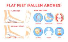 Foot Pathologies Infographic. Flat Foot Anatomy. Deformed