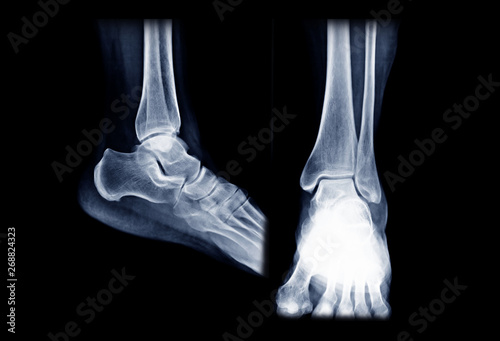 Photo X-ray ankle or Radiographic image or x-ray image of right ankle joint  AP and Lateral  view for diagnosis of frature ankle