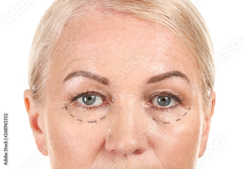Mature woman with marks on her face against white background, closeup Canvas Print
