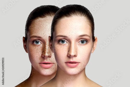 Canvastavla  Closeup before and after portrait of beautiful brunette woman after laser treatment removing freckles on face looking at camera