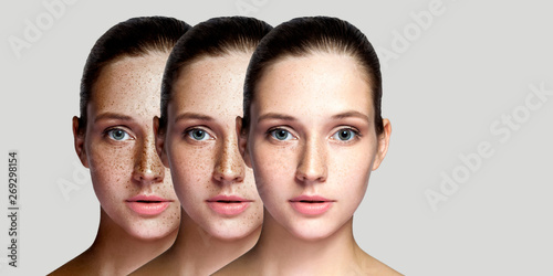 Valokuva Step by step concept of healing and removing freckles