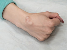 Big Cyst (hygroma), Fluid Filled Lump Associated With A Joint