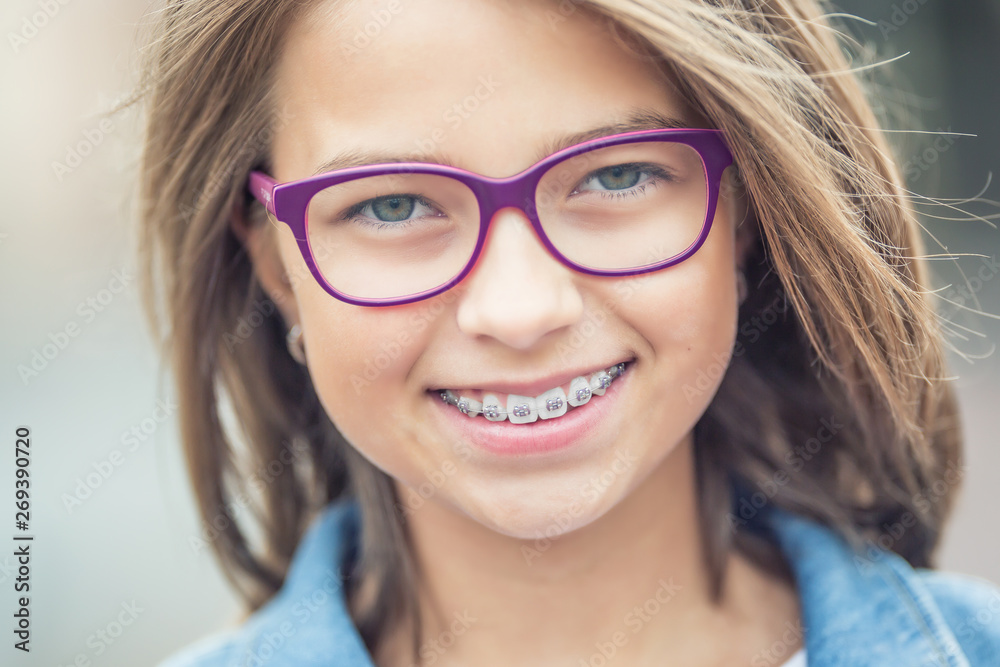 Fototapety, obrazy: Portrait of happy young girl with dental braces and glasses