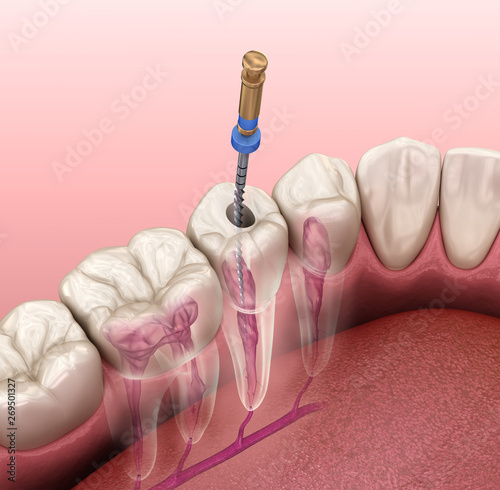 Foto Endodontic root canal treatment process