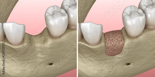 Augmentation Surgery - Adding new bone. 3D illustration Wallpaper Mural