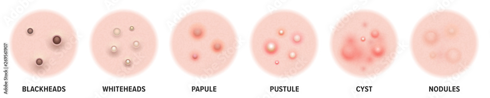 Fototapeta Acne types, skin pimples blackheads and face comedones. Vector icons of skin acne pimples, cosmetology and skincare problems