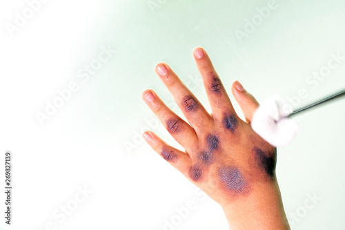 Cuadros en Lienzo The hand of the injured child from the heat admitted to the hospital with cotton wool and tweezers
