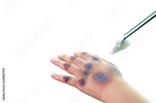Fotografía The hand of the injured child from the heat admitted to the hospital with cotton wool and tweezers