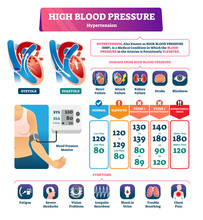 High Blood Pressure Vector Illustration. Labeled Systole Explanation Scheme