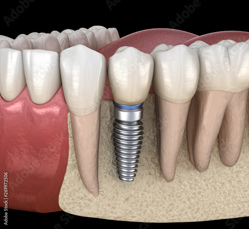 Premolar tooth recovery with implant. Medically accurate 3D illustration of human teeth and dentures concept #269972506