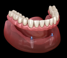 Mandibular Removable Prosthesi...