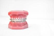 Braces On Teeth Model  Of Orthodontic Bracket Or Brace