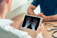 Doctor Holding A Digital Tablet With X-ray Of Hands Of The Patient. Pain On The Joints Of The Fingers. Osteoarthritis Concept