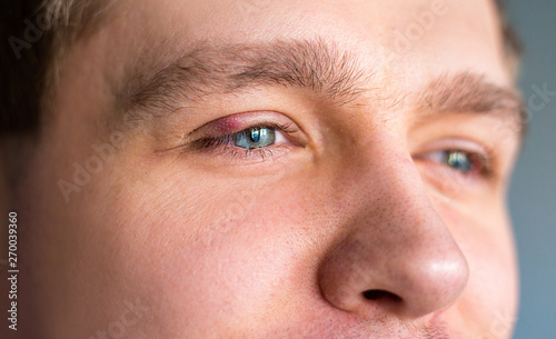 Red upper eye lid with onset of stye infection due to clogged oil gland and staphylococcal bacteria Canvas Print