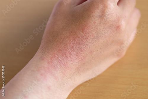 手の皮膚にできた湿疹 Fototapeta