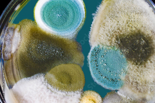 Obraz na plátne Colonies of mold fungi cultivated from indoor air on Petri dish with Sabourad de
