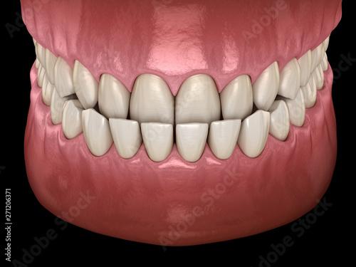Photo Underbite dental occlusion ( Malocclusion of teeth )