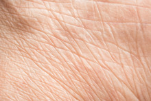 Close Up Old Skin Texture With...