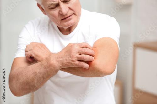 Fototapeta Senior man scratching forearm indoors, closeup. Allergy symptom