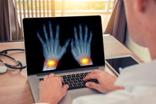 Doctor Watching A X-ray Of Hands With Pain In The Wrists. Radiology And Osteoarthritis Concept