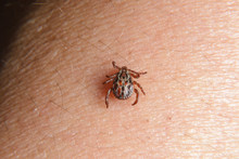Forest Mite On The Skin. Wood Tick