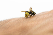 Bee Stinging In Human Hand