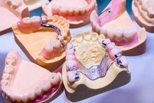 The Sandwich Denture. Removable Denture. Orthopedic Dental Designs. Clasp Dentures. Dentistry. Prosthetic Dentistry.