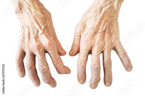 Rheumatoid polyarthritis of hands isolated on white background Canvas Print