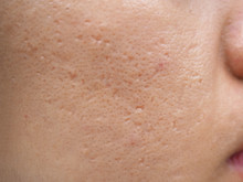 Icepick Scar Acne On Cheek On Face Women Cause Of Skin Loses Collagen, So The Overlaying Skin Collapses And Leaves A Hole,narrow And Deep Using For Cream Or Skin Care Product Concept, Close Up.