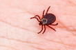 canvas print picture Encephalitis Virus or Lyme Borreliosis Disease Infectious Dermacentor Tick Arachnid Parasite Insect on Skin Macro