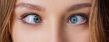 Eyes With Squinted Look And Eyebrows On Male Face. Female Eyes With Strabismus. Hypertropia. Woman Eyes Suffering From Strabismus - Close Up.