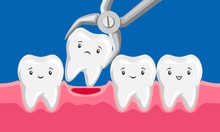Illustration Tooth Is Removed By Forceps In Oral Cavity.