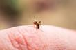 canvas print picture Encephalitis, Yellow Fever, Malaria Disease, Mayaro or Zika Virus Infected Culex Mosquito Parasite Insect Macro
